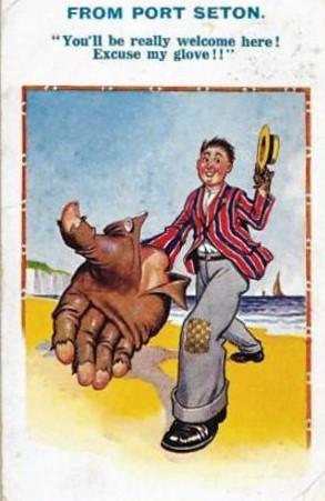 Radon the glove